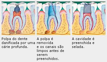 Explicação do tratamento de canal