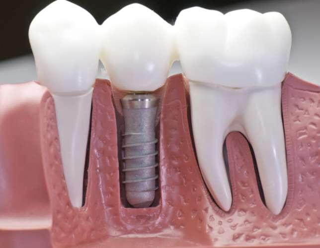 Foto de Implante dentário