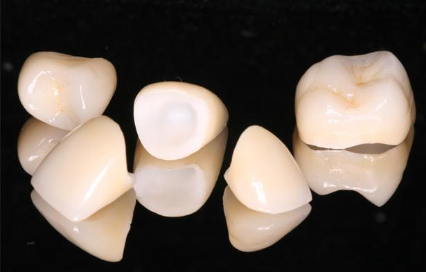 Coroa Dentária de Porcelana