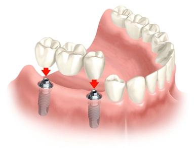 Colocar Prótese Dentária em Goiânia